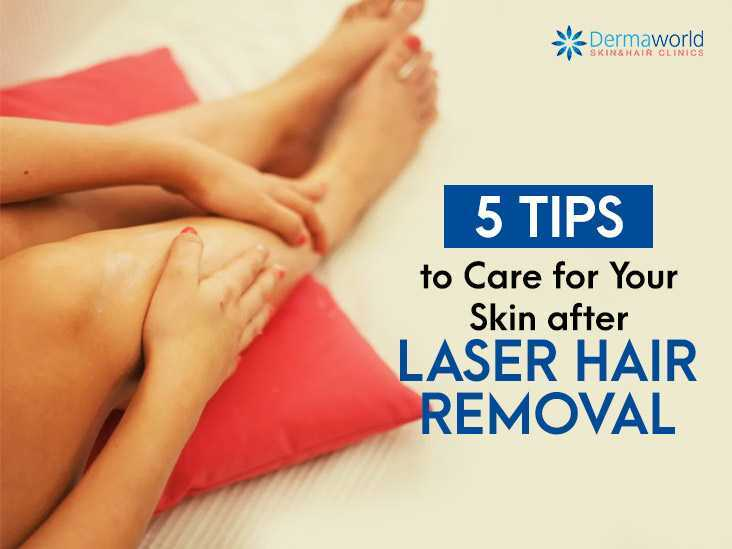 5 Tips to Care for Your Skin after Laser Hair Removal
