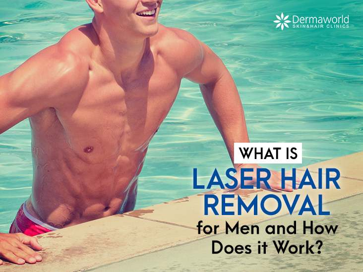 What is Laser Hair Removal for Men and How Does it Work?